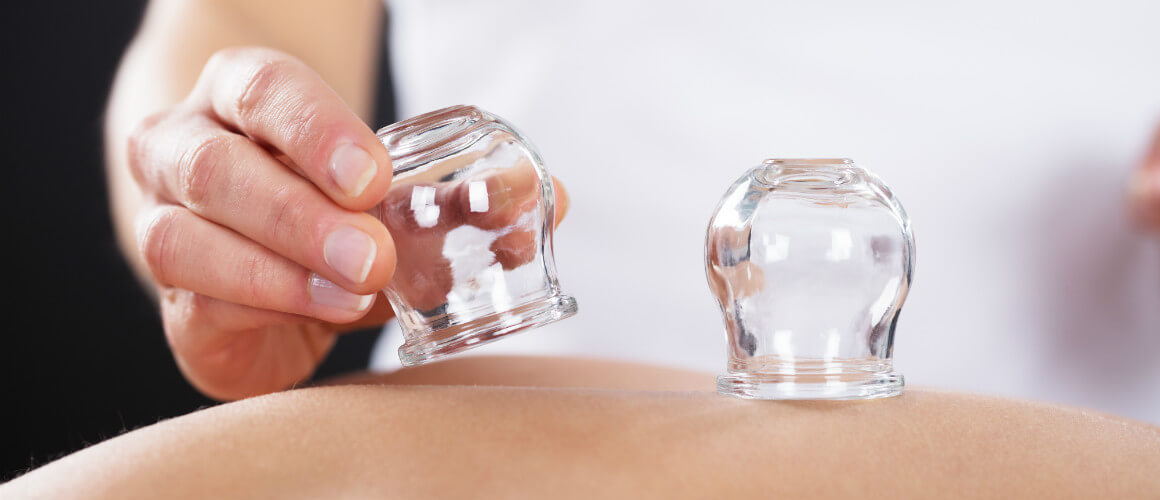 Acupuncture of Iowa Iowa City Services cupping